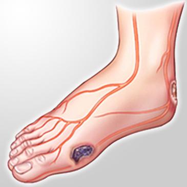 Gestione del piede diabetico