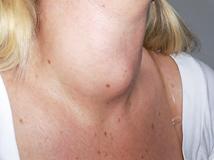 gozzo_tiroide