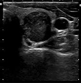 tumore-tiroide-1