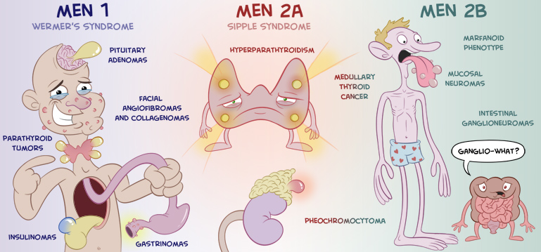 Sindromi Poliendocrine - MEN